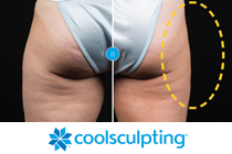 Illuminari_Services_Coolsculpting_210x140