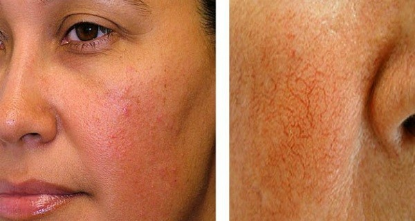 How to treat couperose or rosacea?